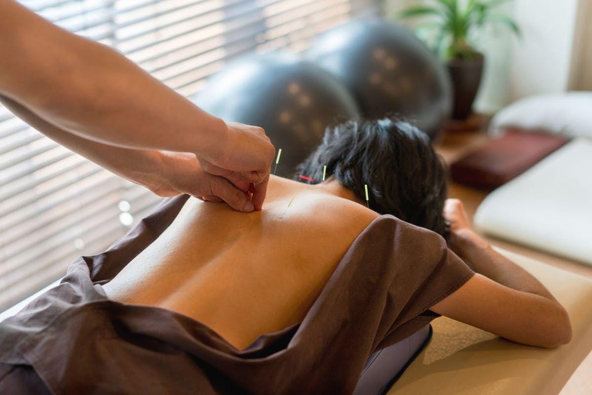 chinese-medicine-beauty-acupuncture