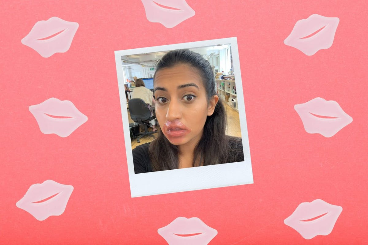best-lip-mask-KNC-All-Natural-Collagen-Infused-Lip-Mask-review