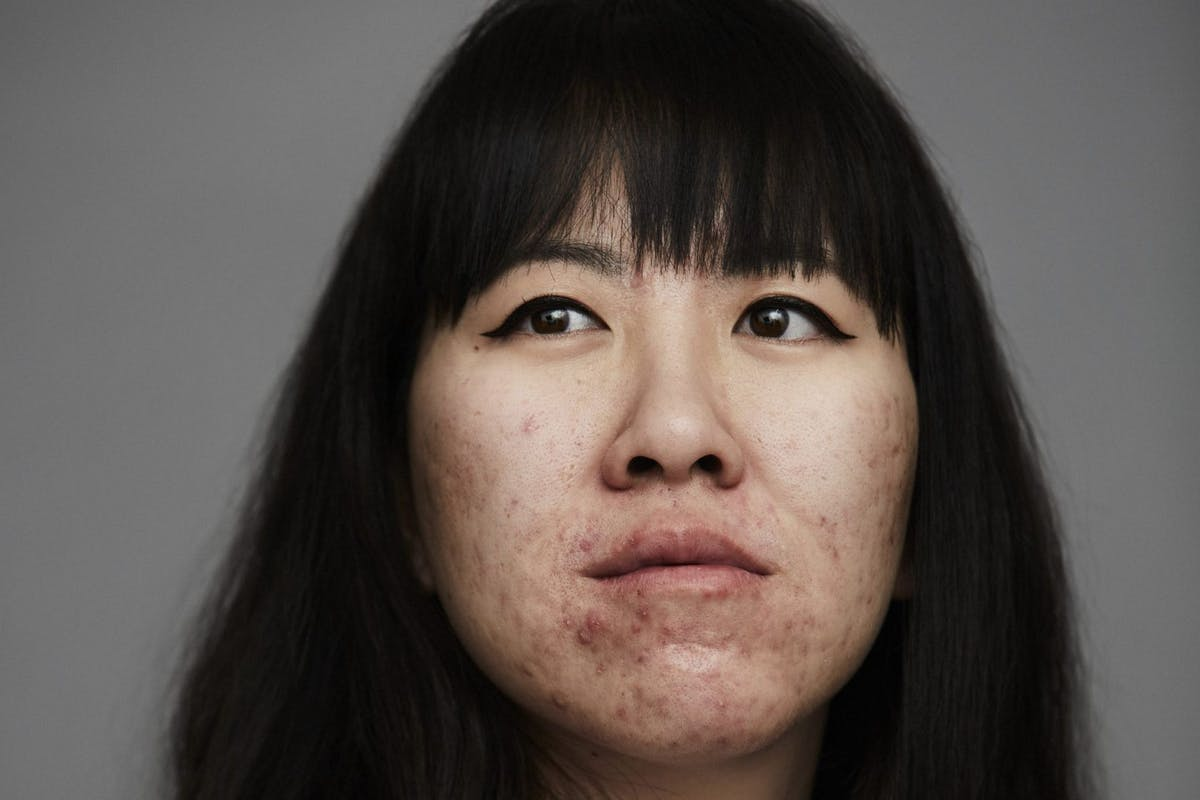 blume-acne-skin-positivity