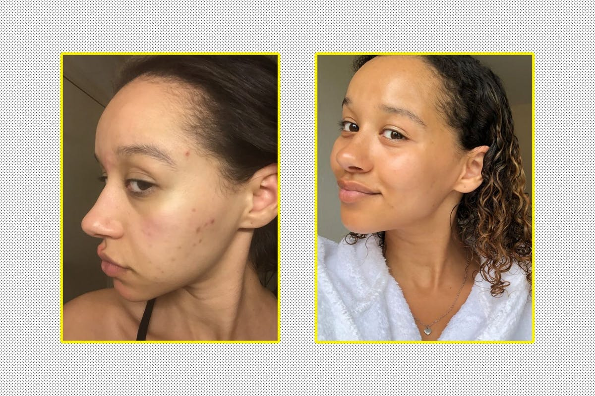 acne-products-before-and-after