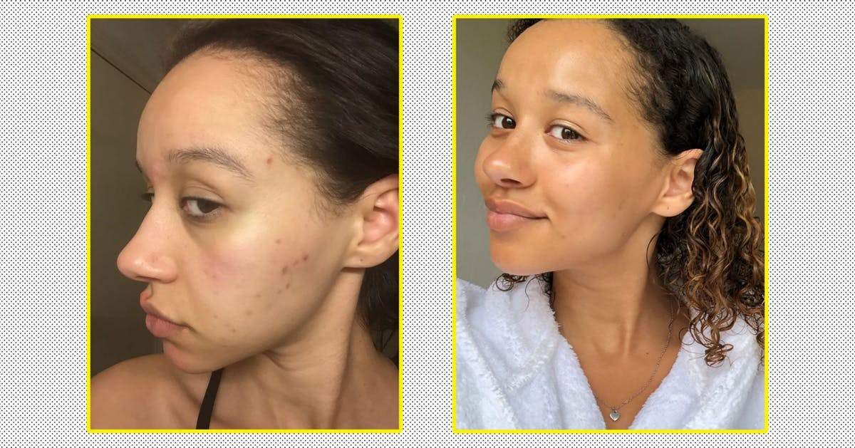 """This is how I got the clear, glowy skin of my dreams after 12 years of trying"""