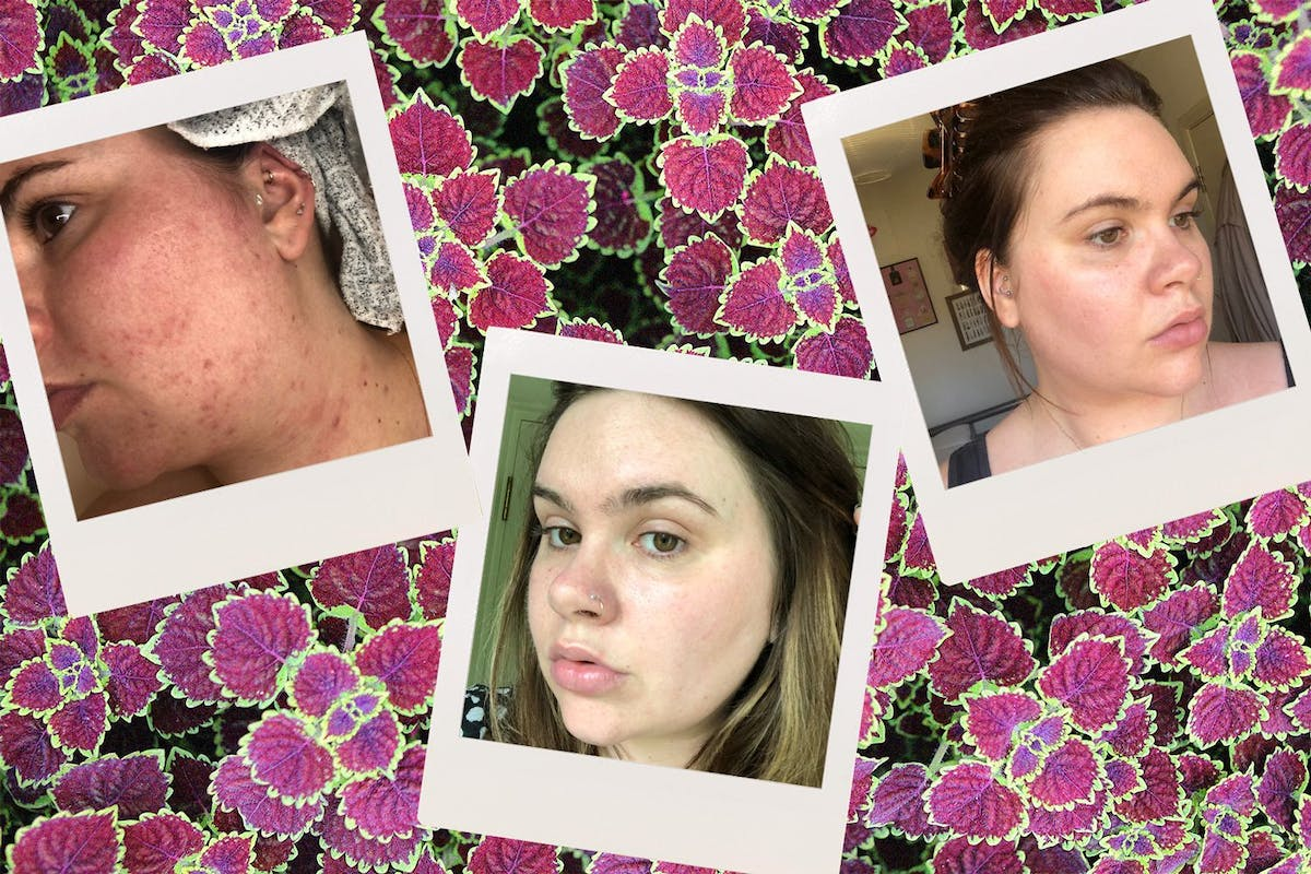 adult-acne-rosacea