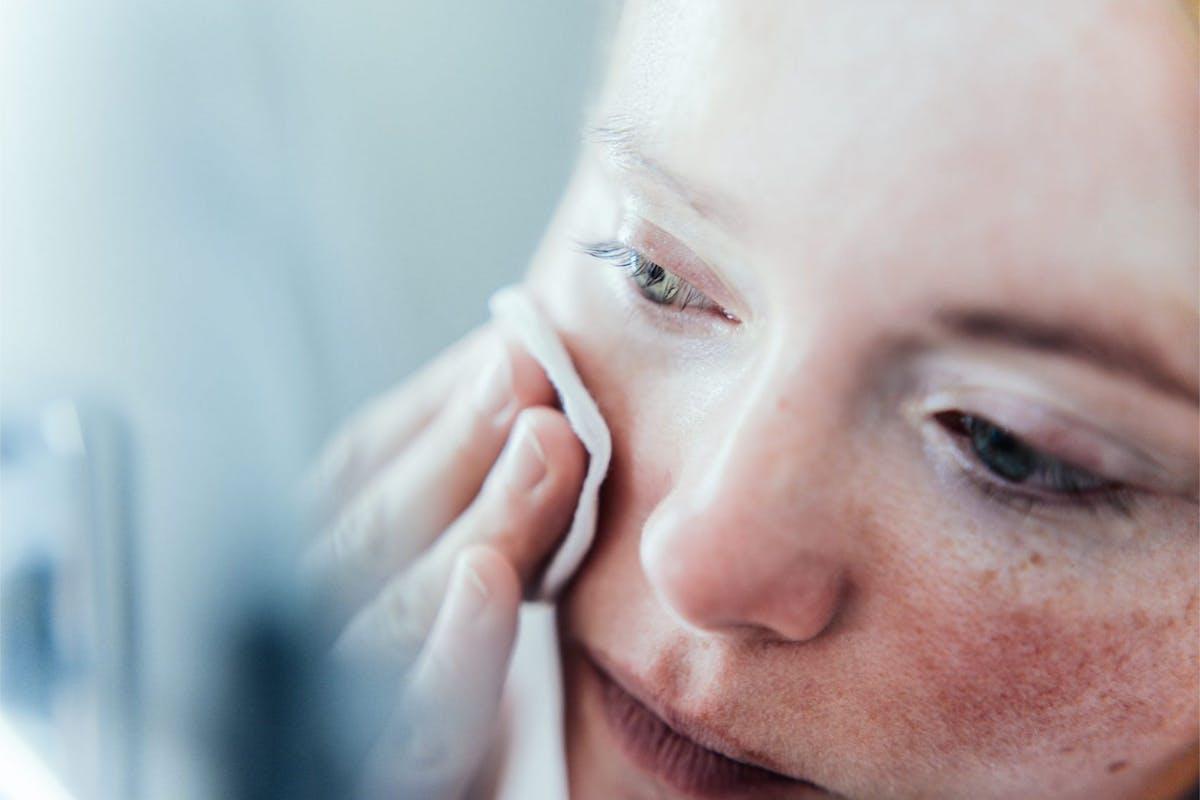 rosacea-skincare-causes-symptoms