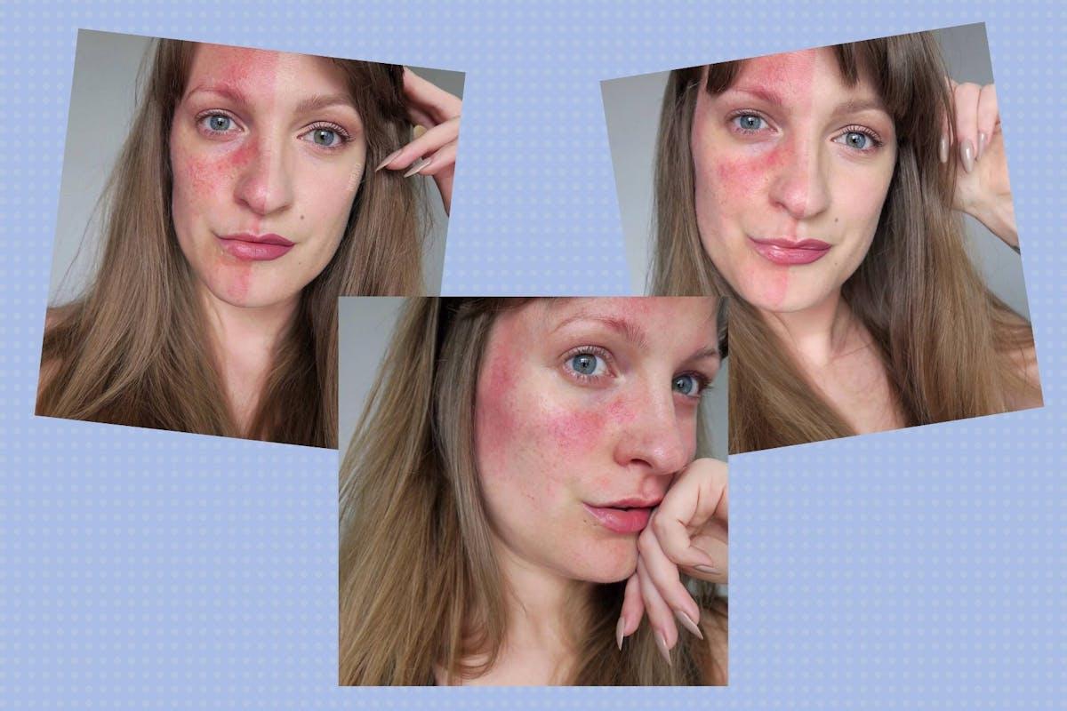 rosacea-skincare-causes-symptoms1