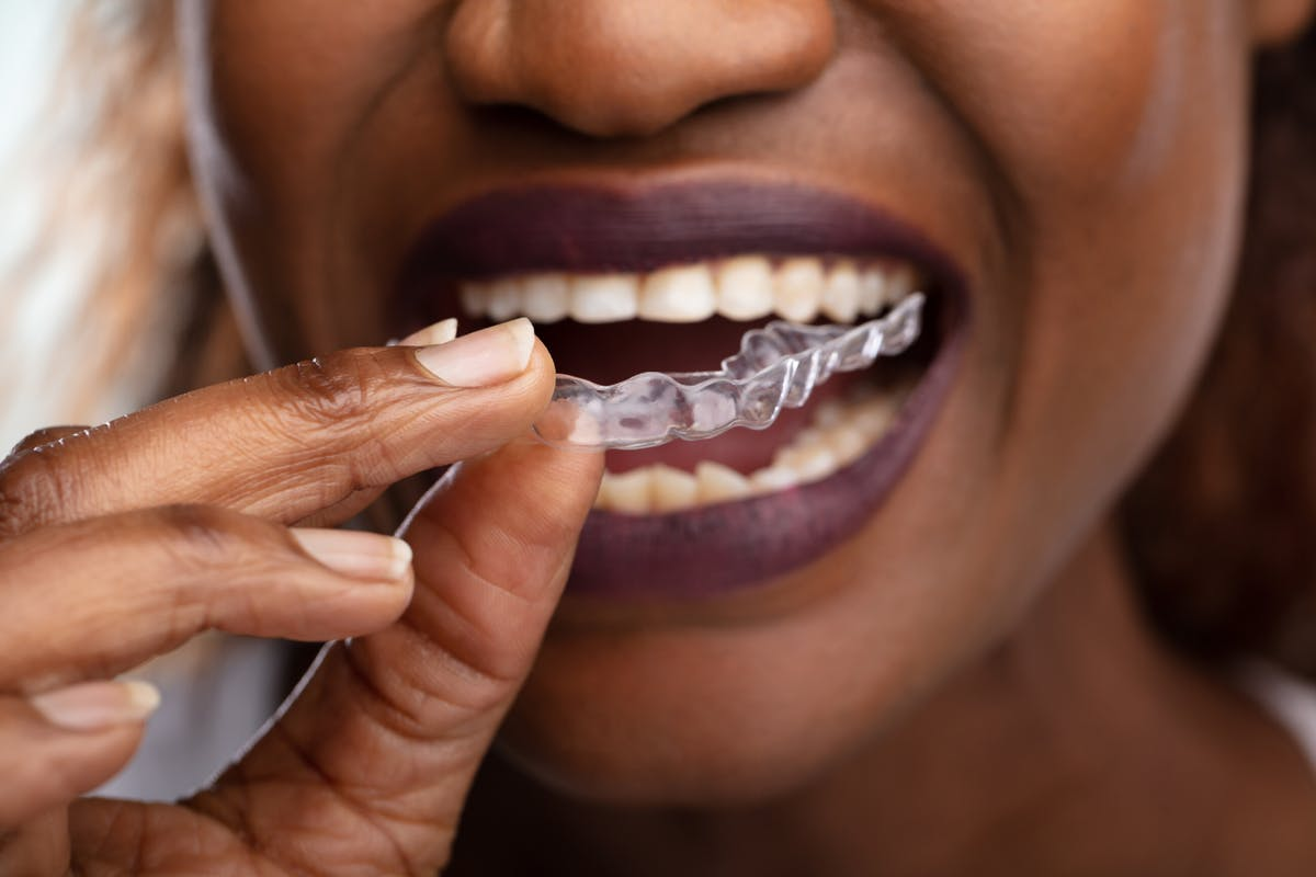 woman-with-invisalign-clear-braces