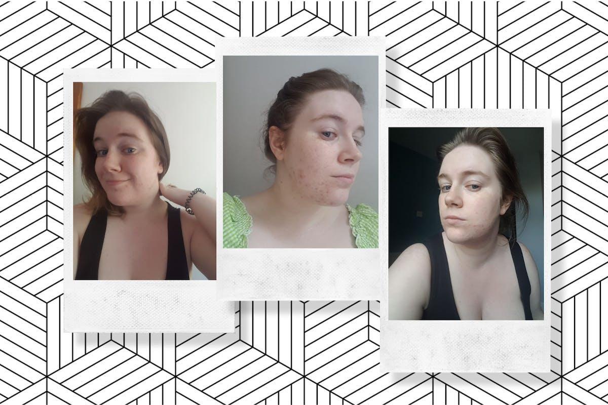Period-Skincare-Bethany-Fulton