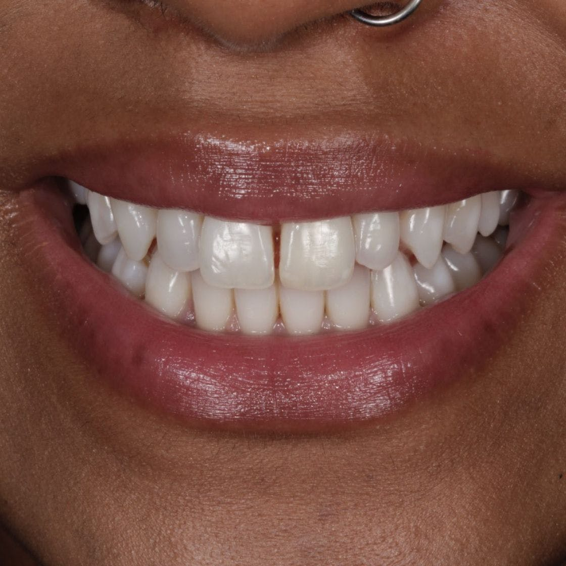 Woman's smile and teeth before composite bonding treatment