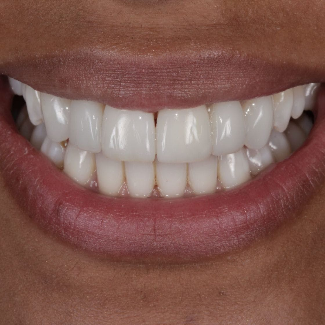 Woman's smile and teeth after composite bonding treatment
