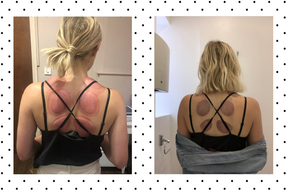 Chloe immediately after cupping, and the bruises 24 hours later.